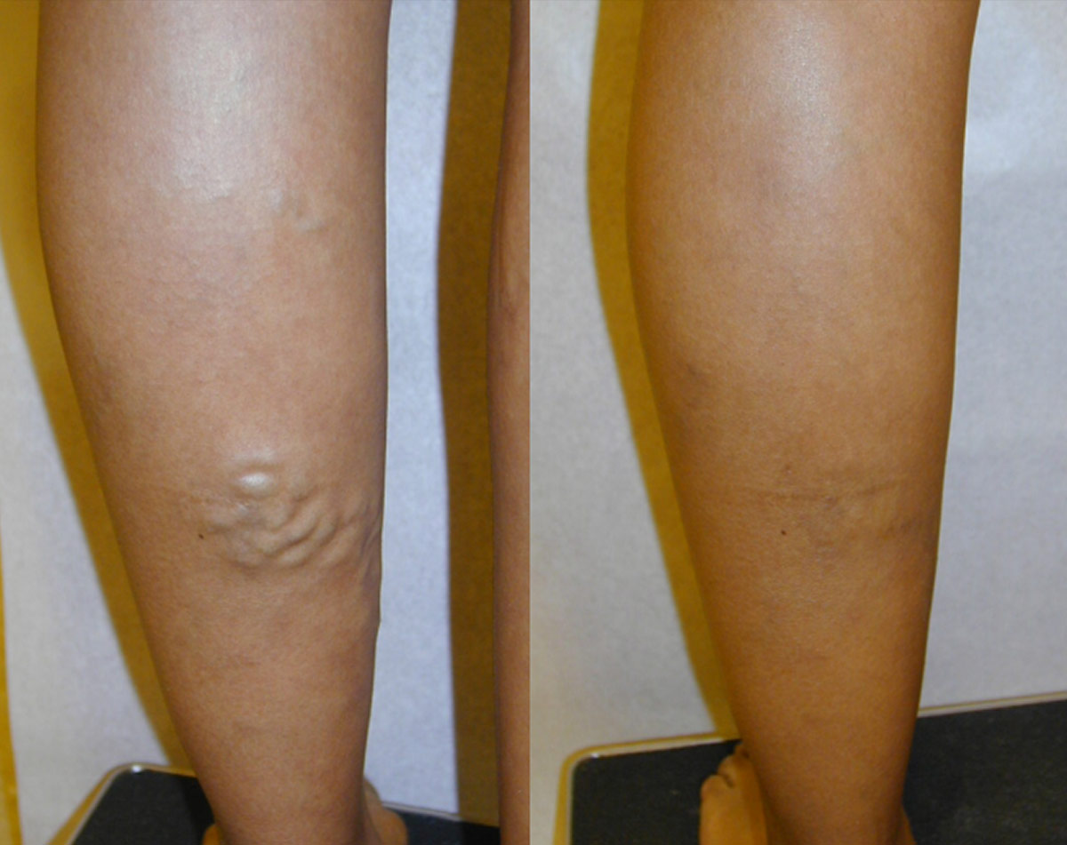 Varicose Veins Treatment Miami