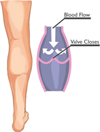 Varicose Veins EVLT Treatment by Miami Vein Institute