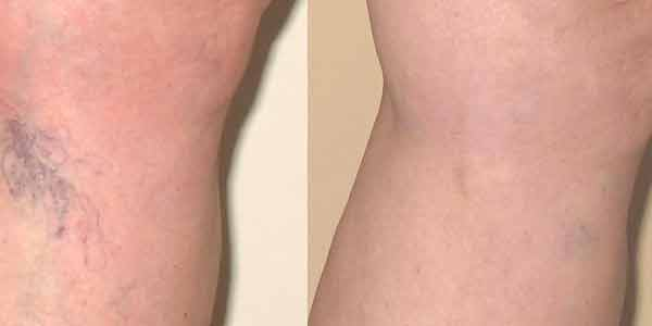 spider veins before and after miami